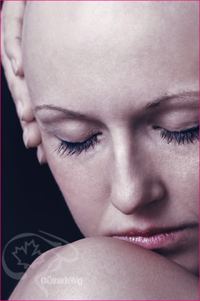 Coping with Hairloss and Alopecia